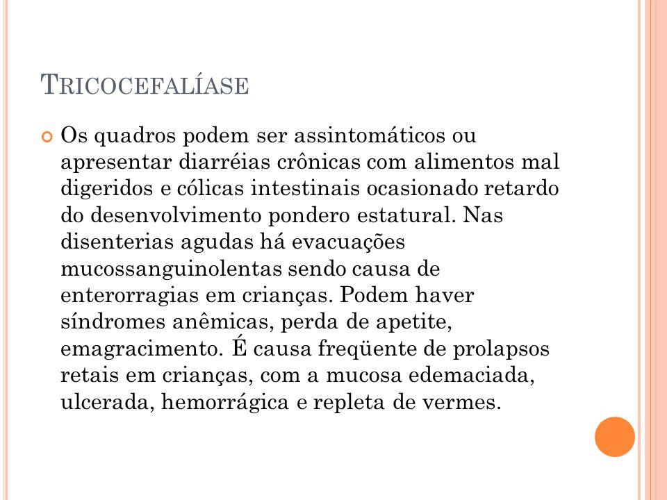 Tricocefalíase