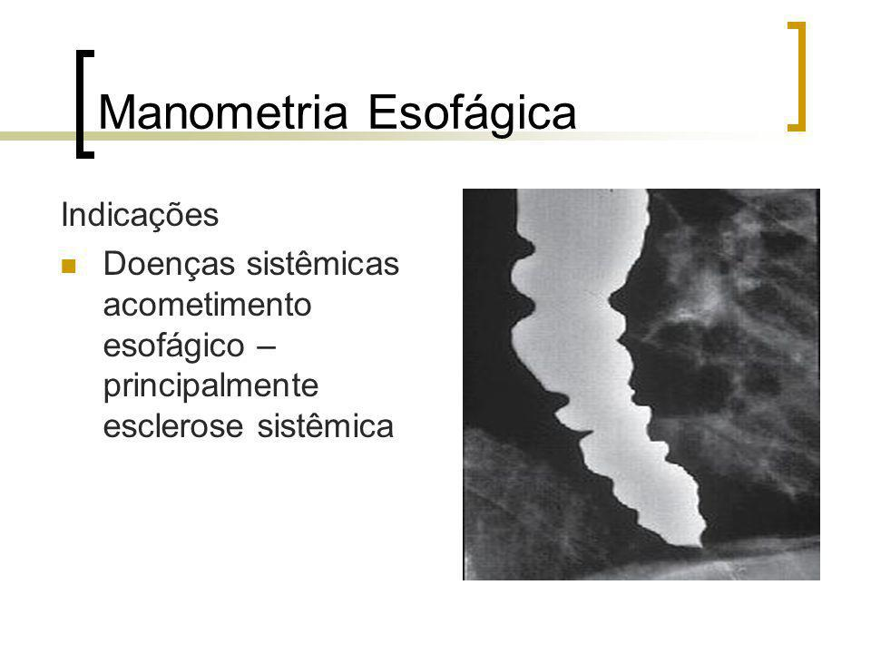 Manometria Esofágica Indicações