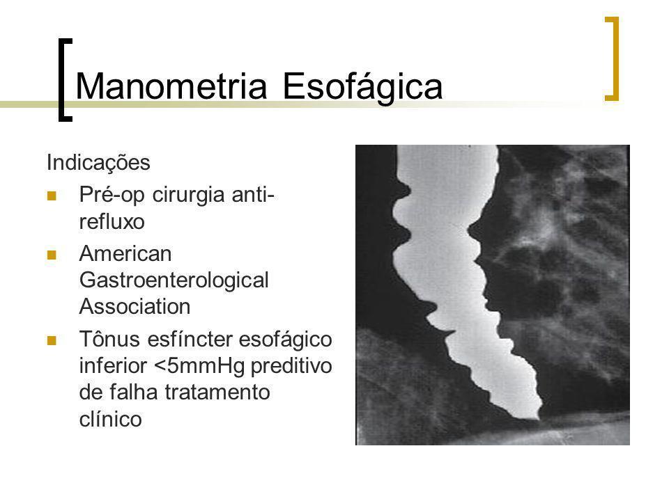 Manometria Esofágica Indicações Pré-op cirurgia anti-refluxo