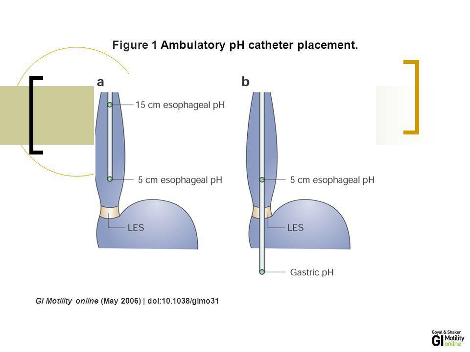 Figure 1 Ambulatory pH catheter placement.