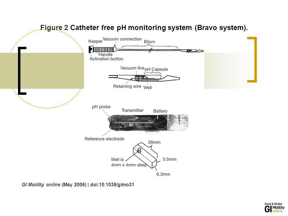 Figure 2 Catheter free pH monitoring system (Bravo system).
