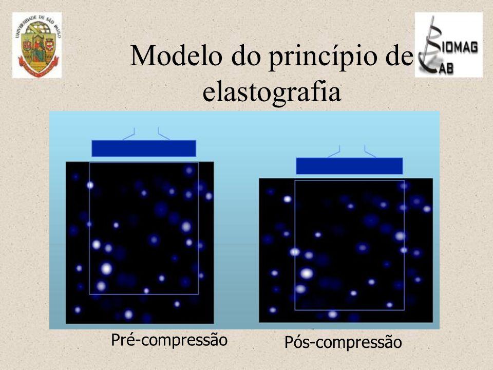 Modelo do princípio de elastografia