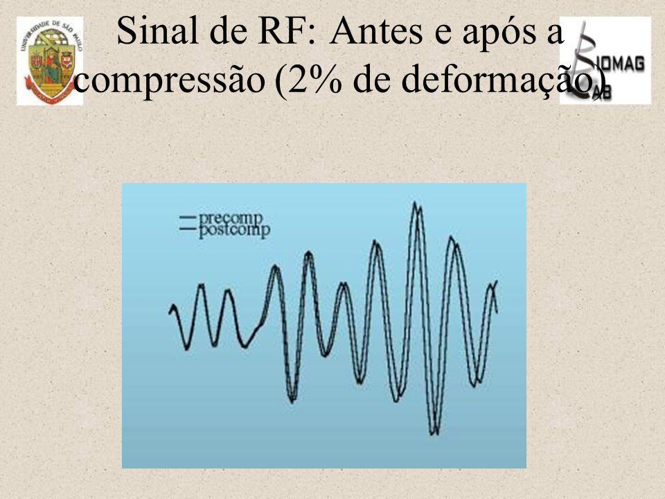 Sinal de RF: Antes e após a compressão (2% de deformação)