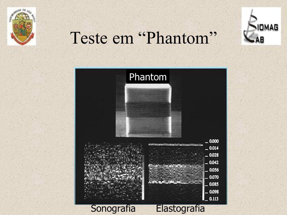 Teste em Phantom Phantom Sonografia Elastografia