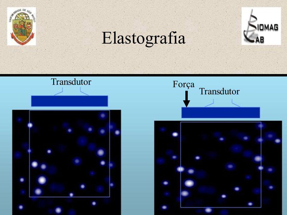 Elastografia Transdutor Força Transdutor