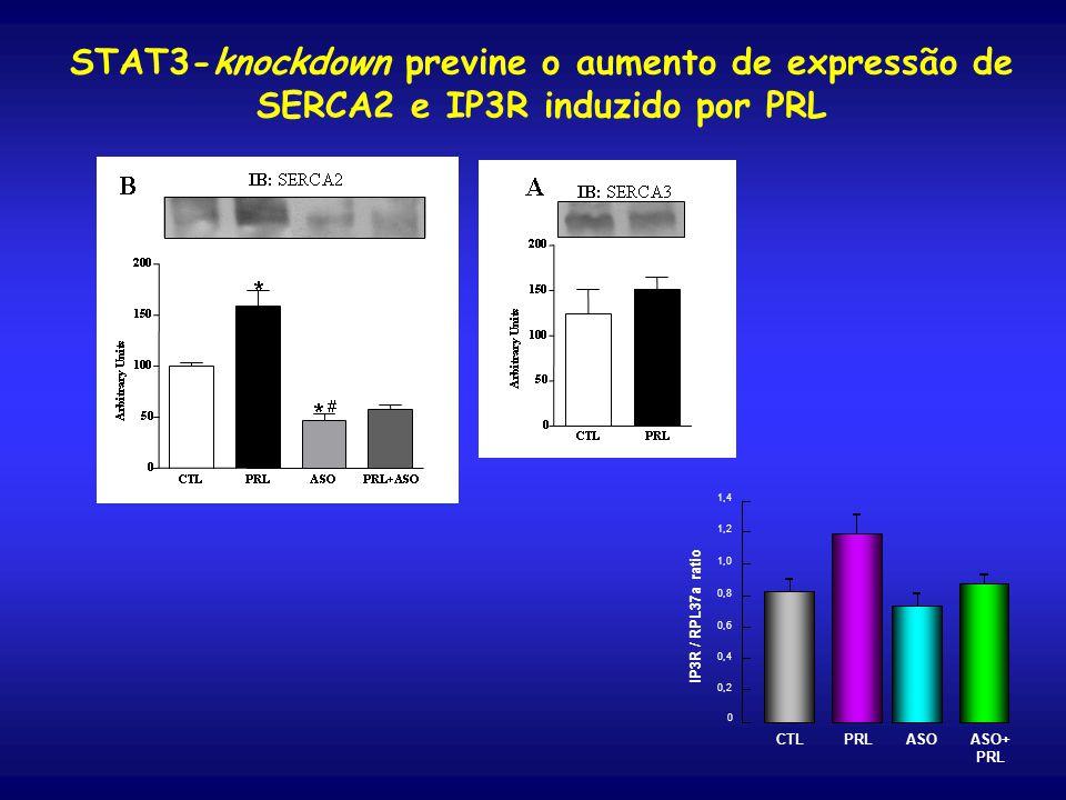 STAT3-knockdown previne o aumento de expressão de SERCA2 e IP3R induzido por PRL