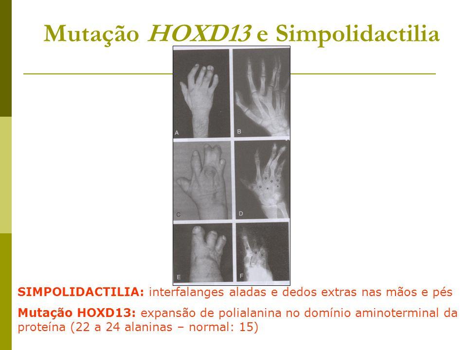 Mutação HOXD13 e Simpolidactilia
