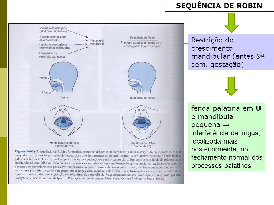 SEQUÊNCIA DE ROBIN Restrição do crescimento mandibular (antes 9ª sem. gestação)