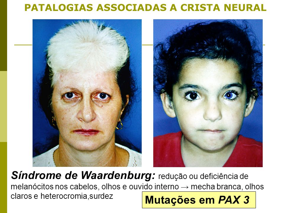 PATALOGIAS ASSOCIADAS A CRISTA NEURAL