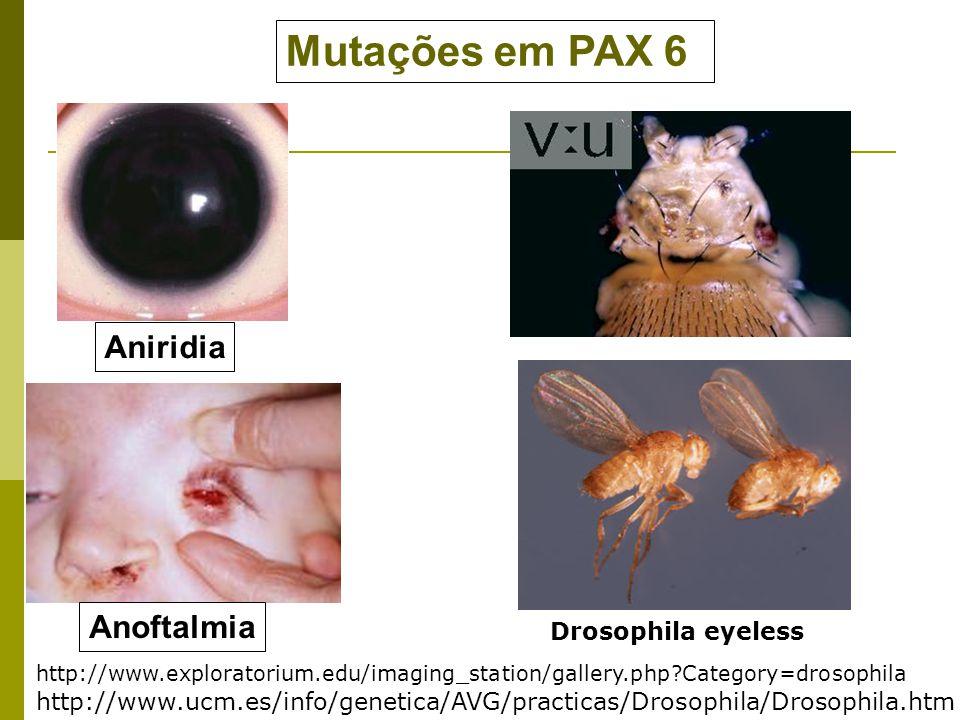 Mutações em PAX 6 Aniridia Anoftalmia Drosophila eyeless
