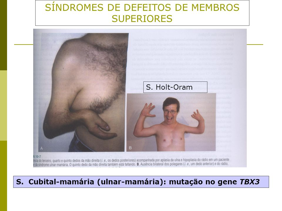 SÍNDROMES DE DEFEITOS DE MEMBROS SUPERIORES