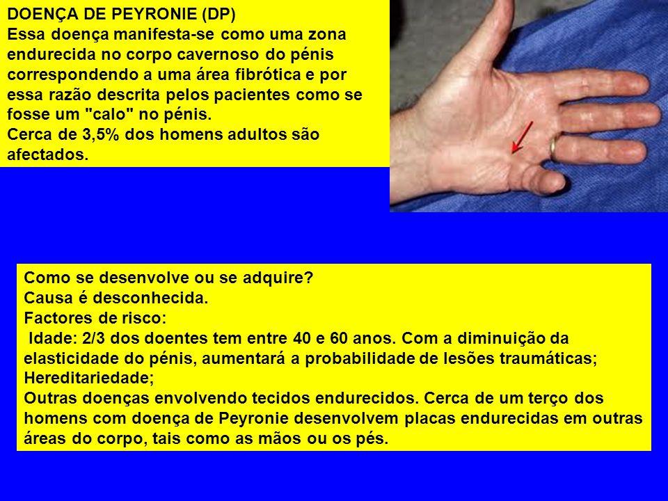 DOENÇA DE PEYRONIE (DP)