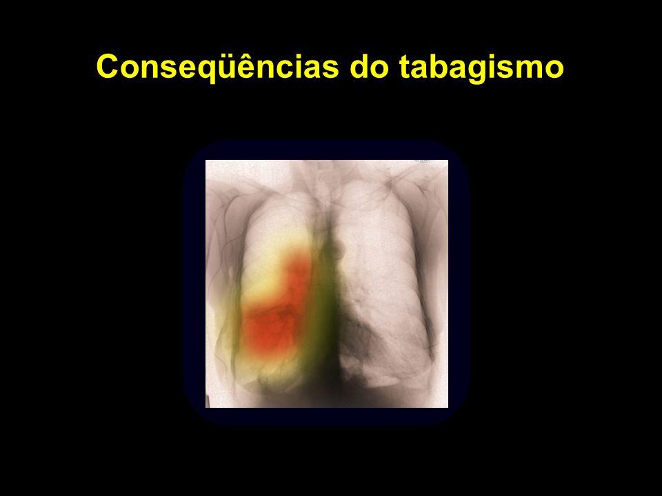 Conseqüências do tabagismo