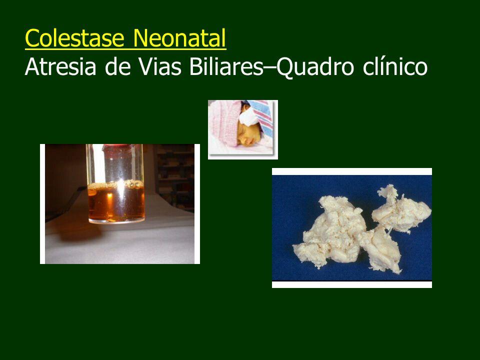 Colestase Neonatal Atresia de Vias Biliares–Quadro clínico