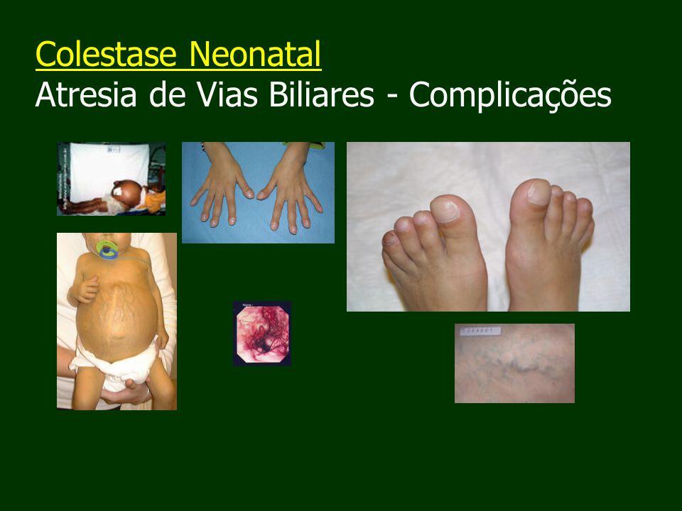 Colestase Neonatal Atresia de Vias Biliares - Complicações
