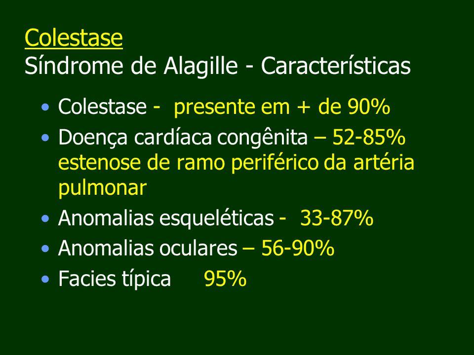 Colestase Síndrome de Alagille - Características