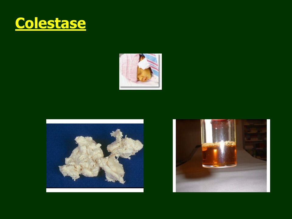 Colestase