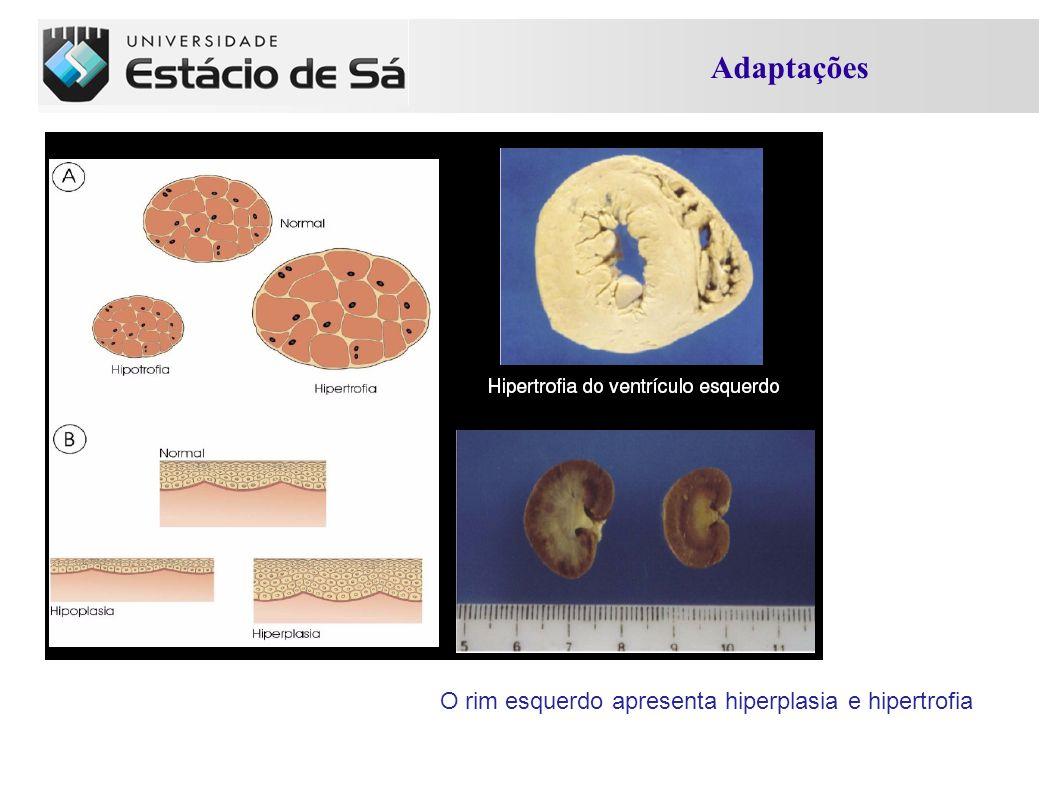 Adaptações O rim esquerdo apresenta hiperplasia e hipertrofia