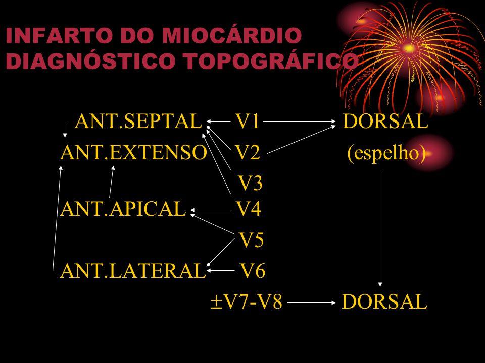 INFARTO DO MIOCÁRDIO DIAGNÓSTICO TOPOGRÁFICO