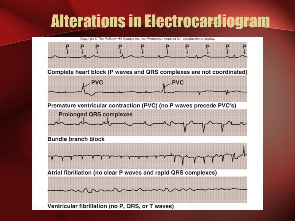 Alterations in Electrocardiogram