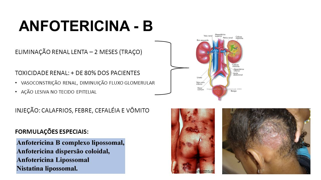 ANFOTERICINA - B ELIMINAÇÃO RENAL LENTA – 2 MESES (TRAÇO)