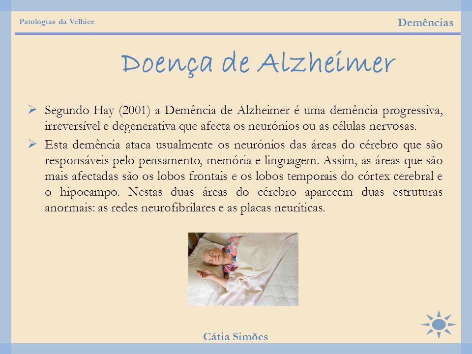 Patologias da Velhice Demências. Doença de Alzheimer.