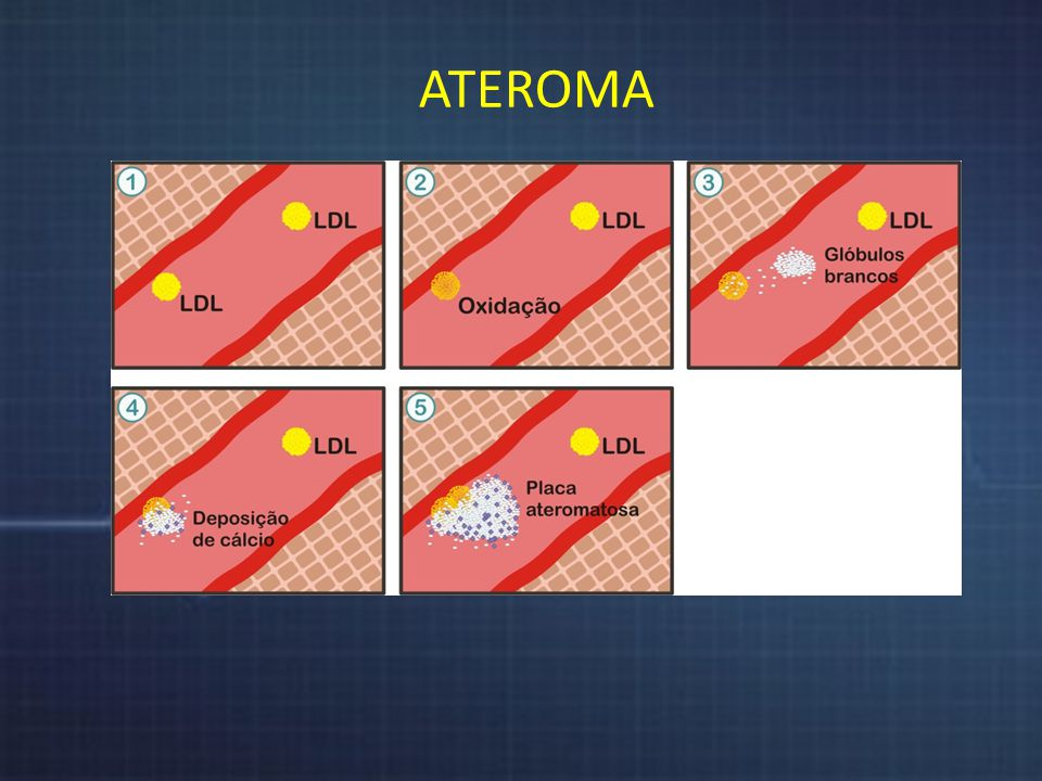 Colesterol ATEROMA