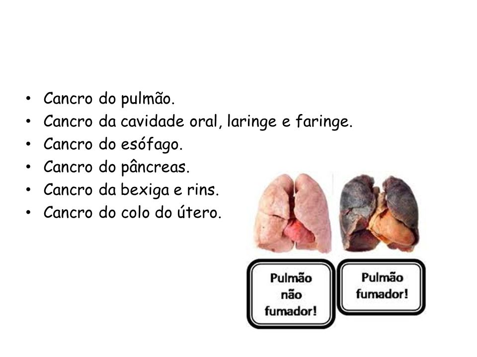 Cancro do pulmão. Cancro da cavidade oral, laringe e faringe. Cancro do esófago. Cancro do pâncreas.