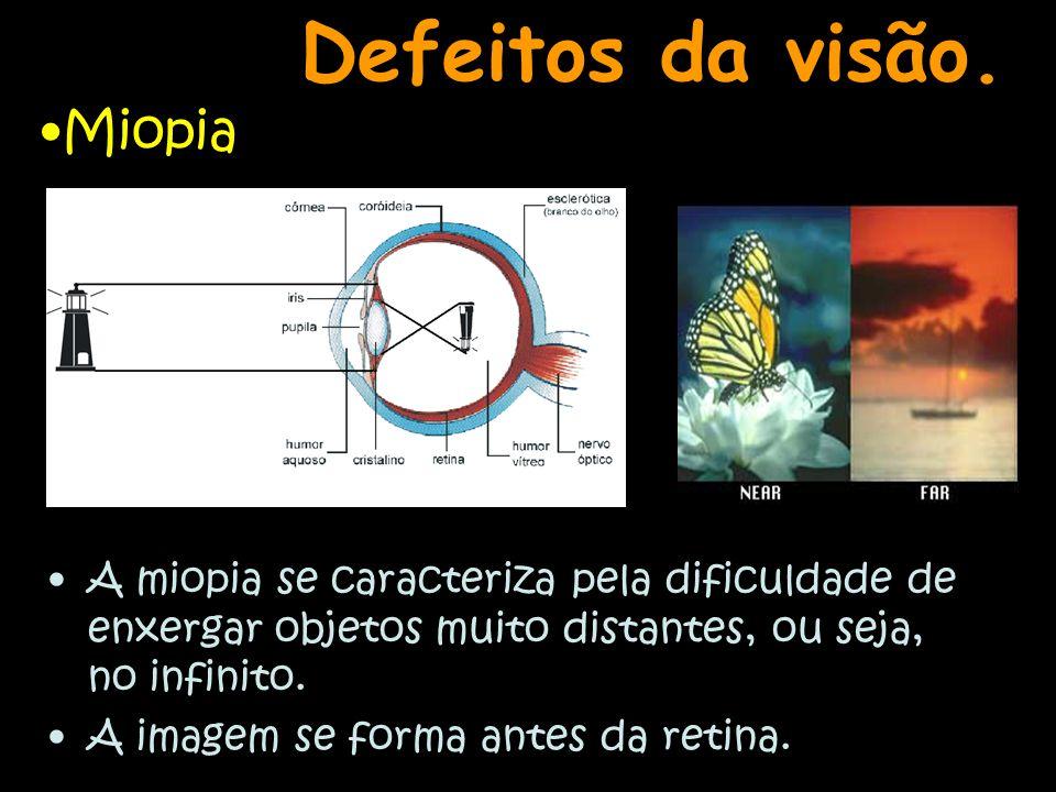 Defeitos da visão. Miopia