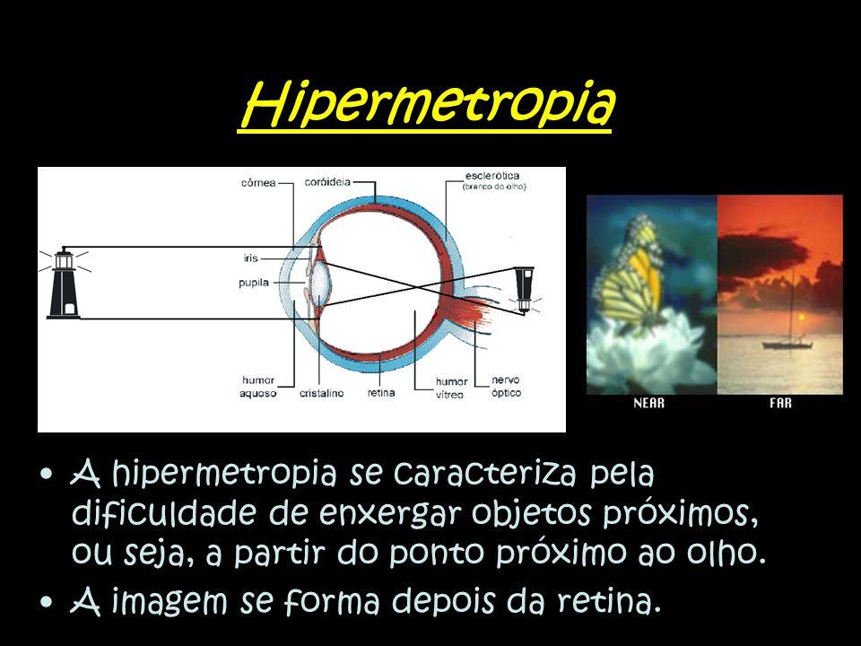 Hipermetropia A hipermetropia se caracteriza pela dificuldade de enxergar objetos próximos, ou seja, a partir do ponto próximo ao olho.