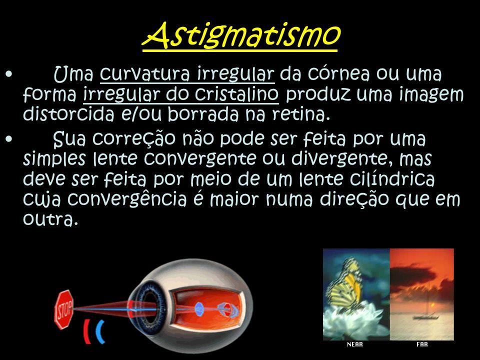 Astigmatismo Uma curvatura irregular da córnea ou uma forma irregular do cristalino produz uma imagem distorcida e/ou borrada na retina.
