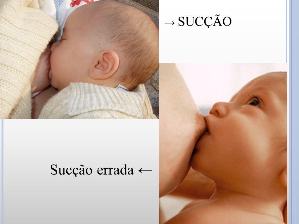 → SUCÇÃO CORRETA Sucção errada ←