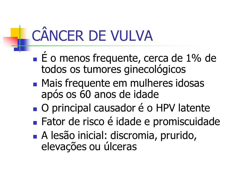 CÂNCER DE VULVA É o menos frequente, cerca de 1% de todos os tumores ginecológicos. Mais frequente em mulheres idosas após os 60 anos de idade.