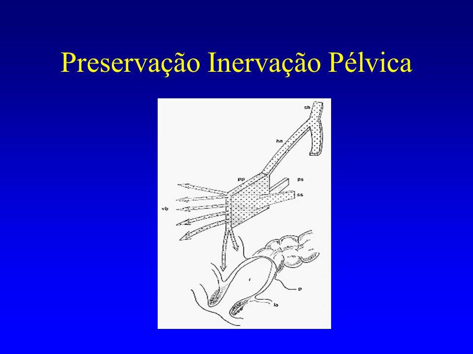 Preservação Inervação Pélvica