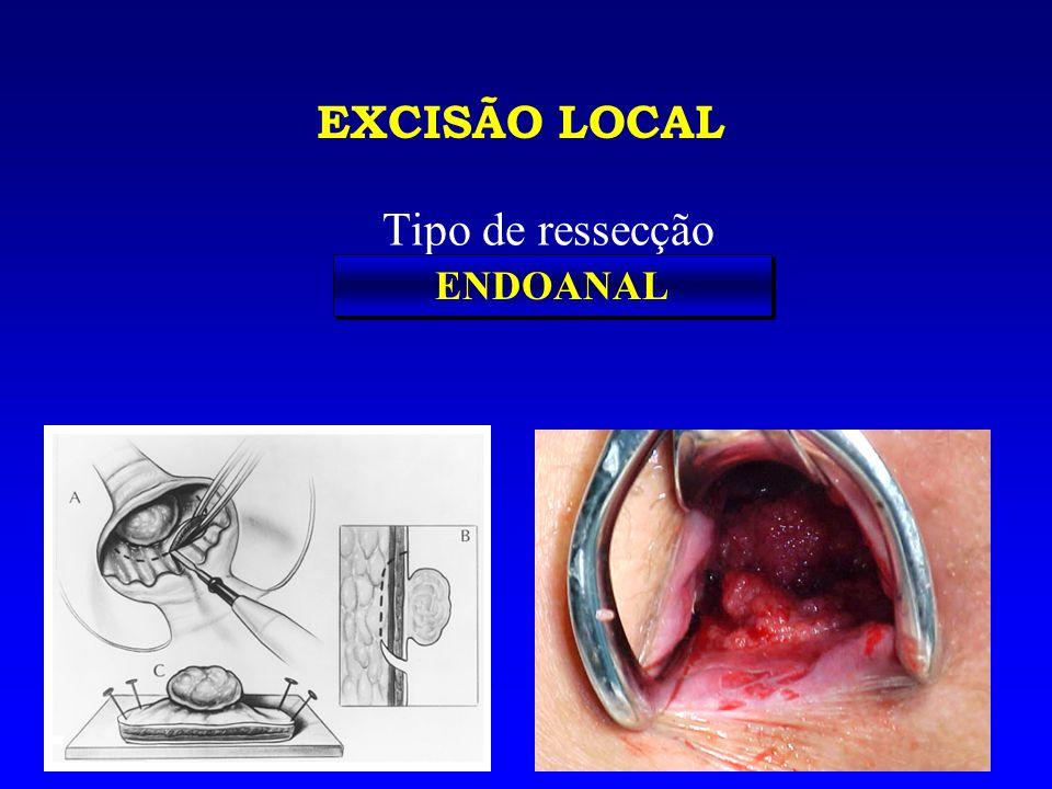 EXCISÃO LOCAL Tipo de ressecção ENDOANAL