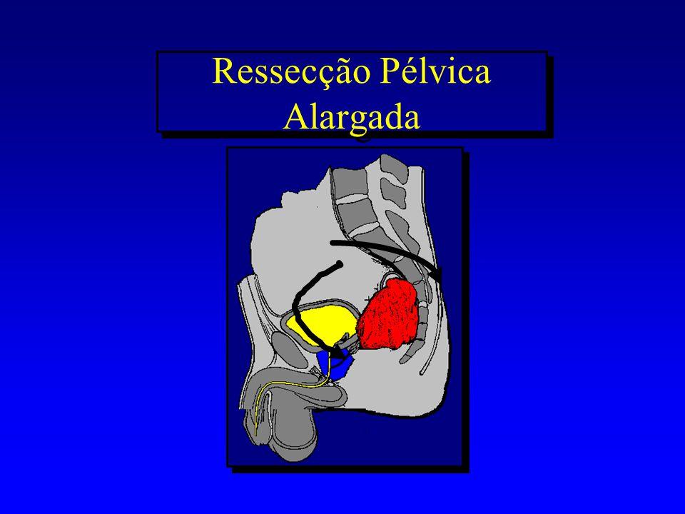 Ressecção Pélvica Alargada