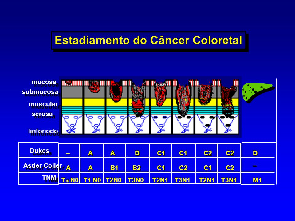 Estadiamento do Câncer Coloretal