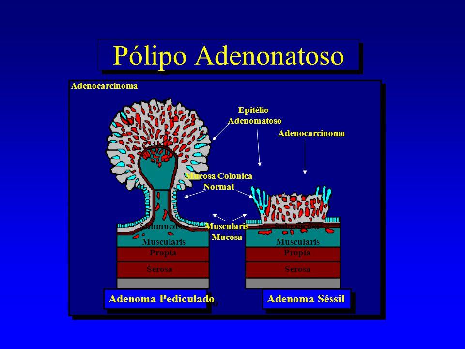Pólipo Adenonatoso Adenoma Pediculado Adenoma Séssil Adenocarcinoma