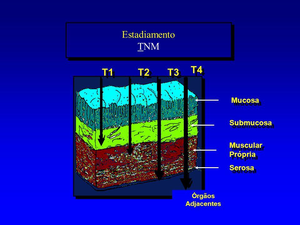 Estadiamento TNM T4 T1 T2 T3 Mucosa Submucosa Muscular Própria Serosa