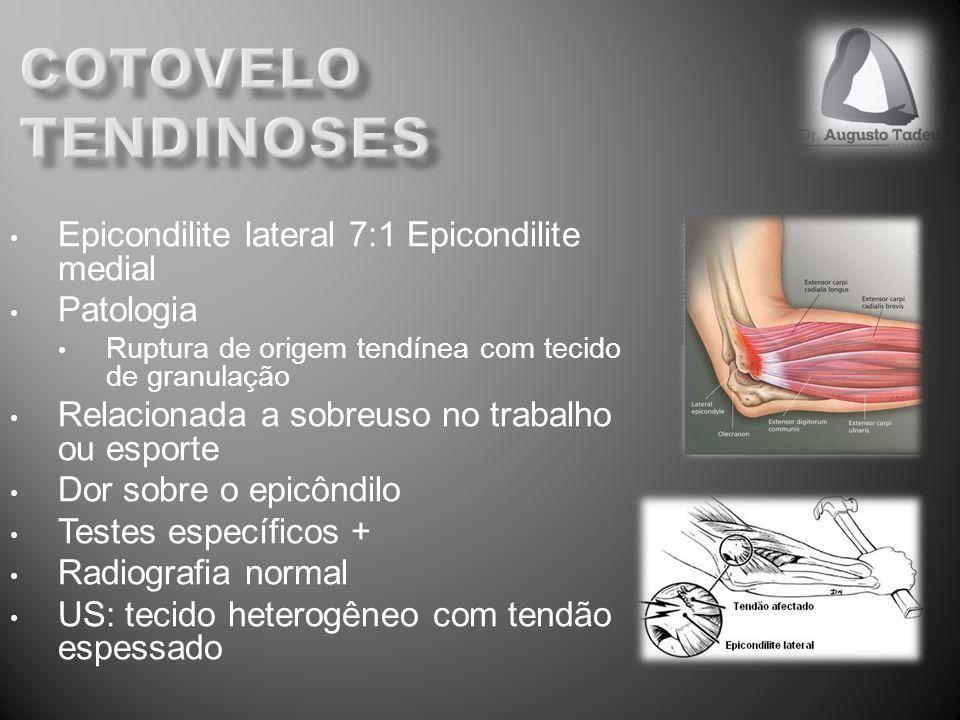 cotovelo tendinoses Epicondilite lateral 7:1 Epicondilite medial