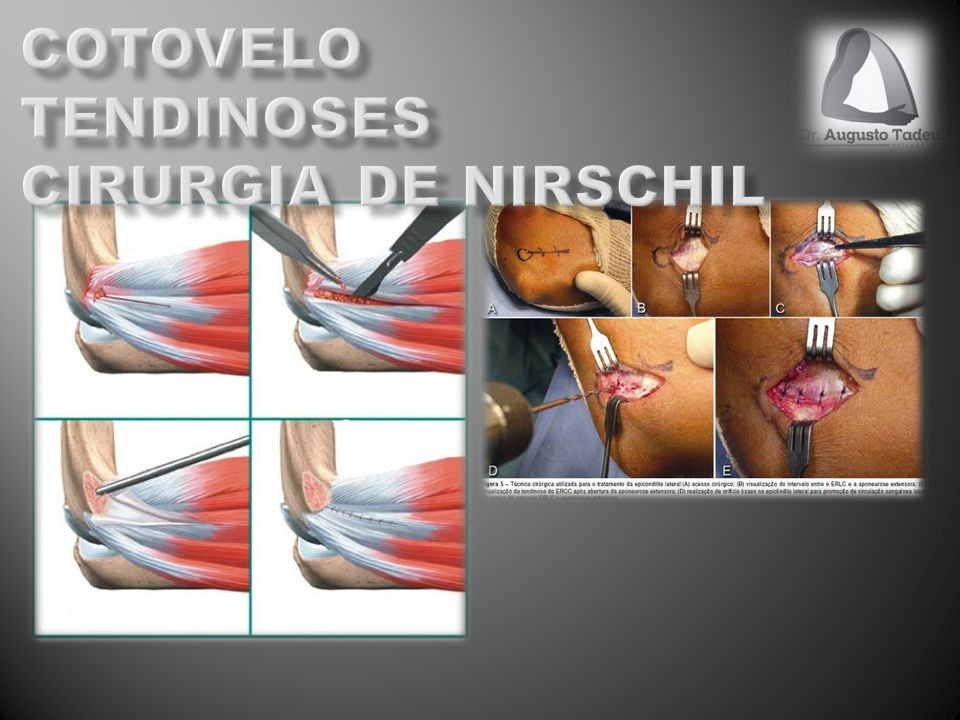 cotovelo tendinoses CIRURGIA DE NIRSCHIL