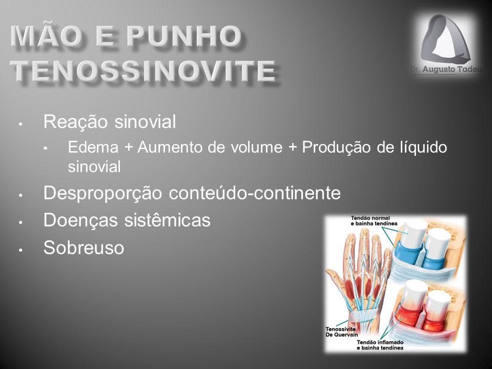 mão e punho Tenossinovite