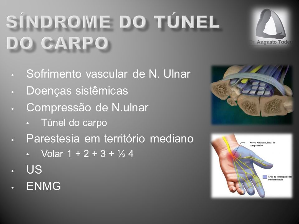 síndrome do túnel do carpo