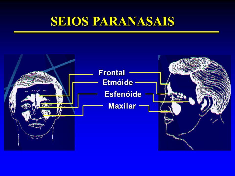 SEIOS PARANASAIS Frontal Etmóide Esfenóide Maxilar