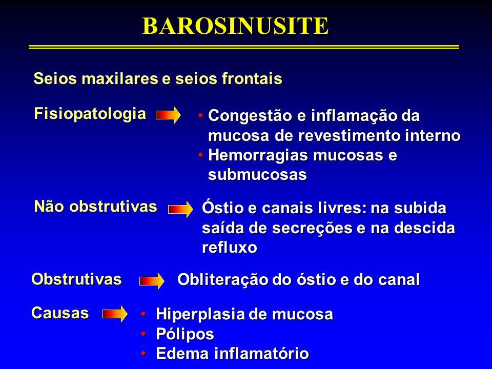 BAROSINUSITE Seios maxilares e seios frontais Fisiopatologia