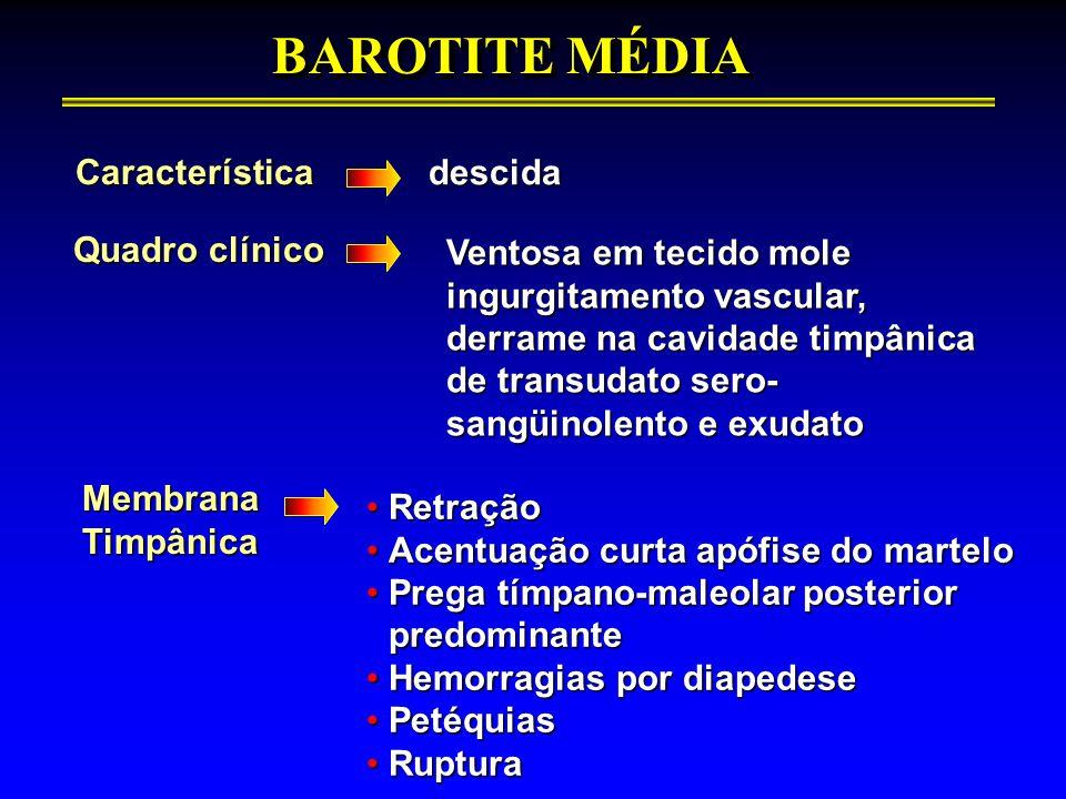 BAROTITE MÉDIA Característica descida Quadro clínico