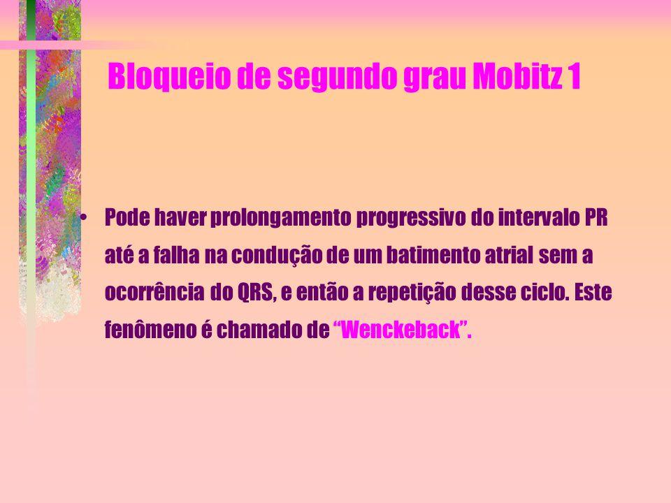 Bloqueio de segundo grau Mobitz 1