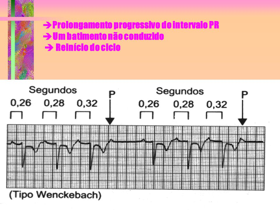 Prolongamento progressivo do intervalo PR Um batimento não conduzido  Reinício do ciclo