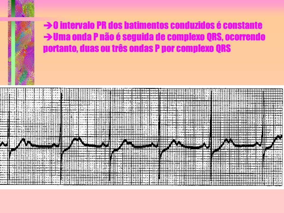 O intervalo PR dos batimentos conduzidos é constante Uma onda P não é seguida de complexo QRS, ocorrendo portanto, duas ou três ondas P por complexo QRS