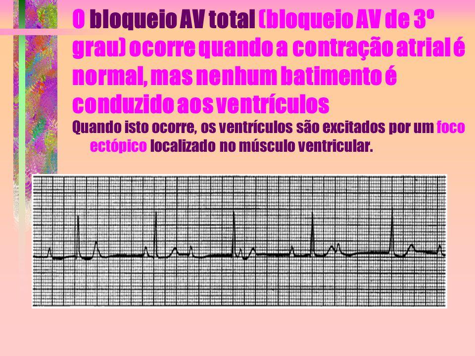 O bloqueio AV total (bloqueio AV de 3º grau) ocorre quando a contração atrial é normal, mas nenhum batimento é conduzido aos ventrículos